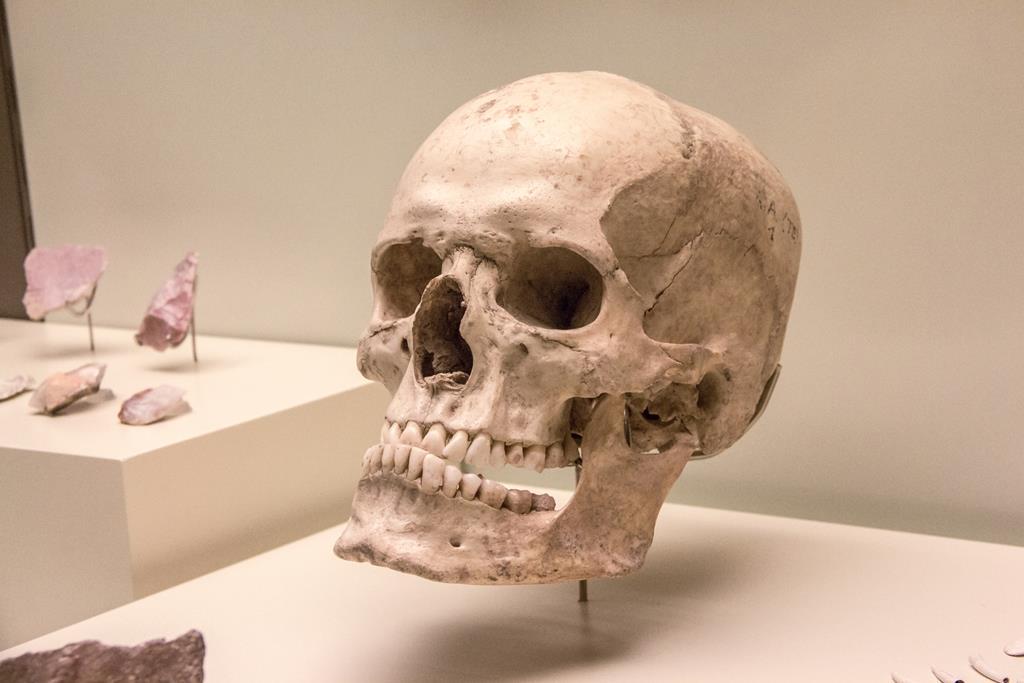 Curiosidades: As principais diferenças podem ser notadas no crânio e na pelve.