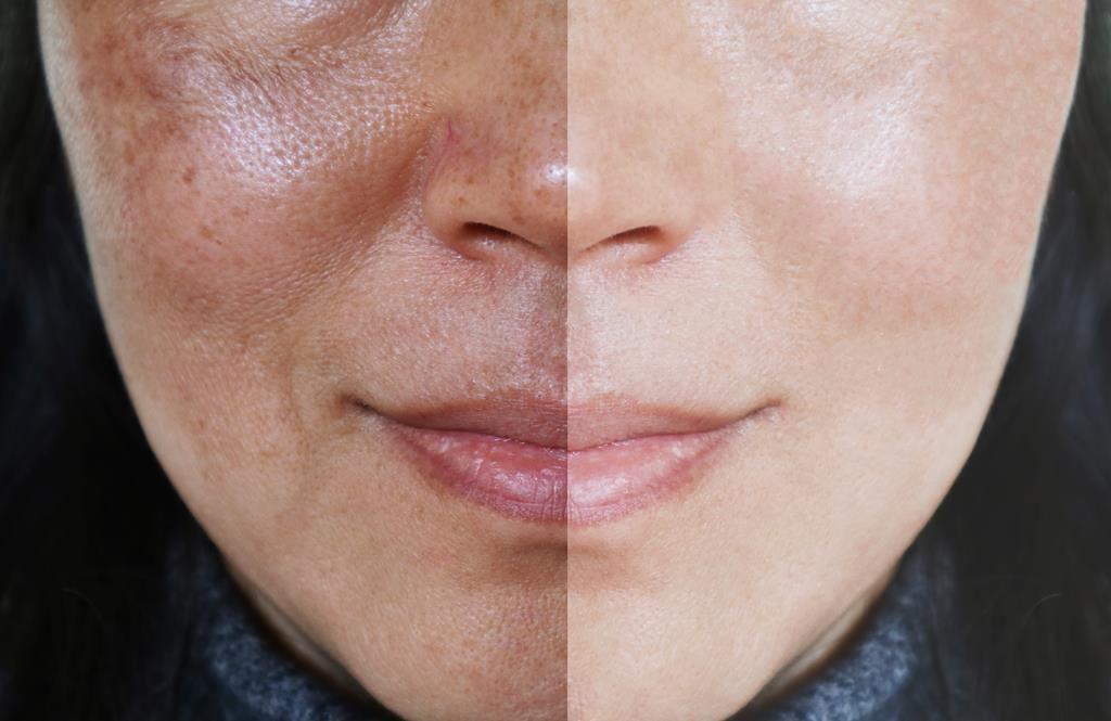 rosto mostrando diferença entre cuidados com a pele