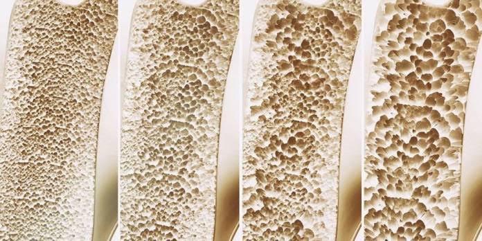 a osteoporose não deve ser tratada com Nimesulida