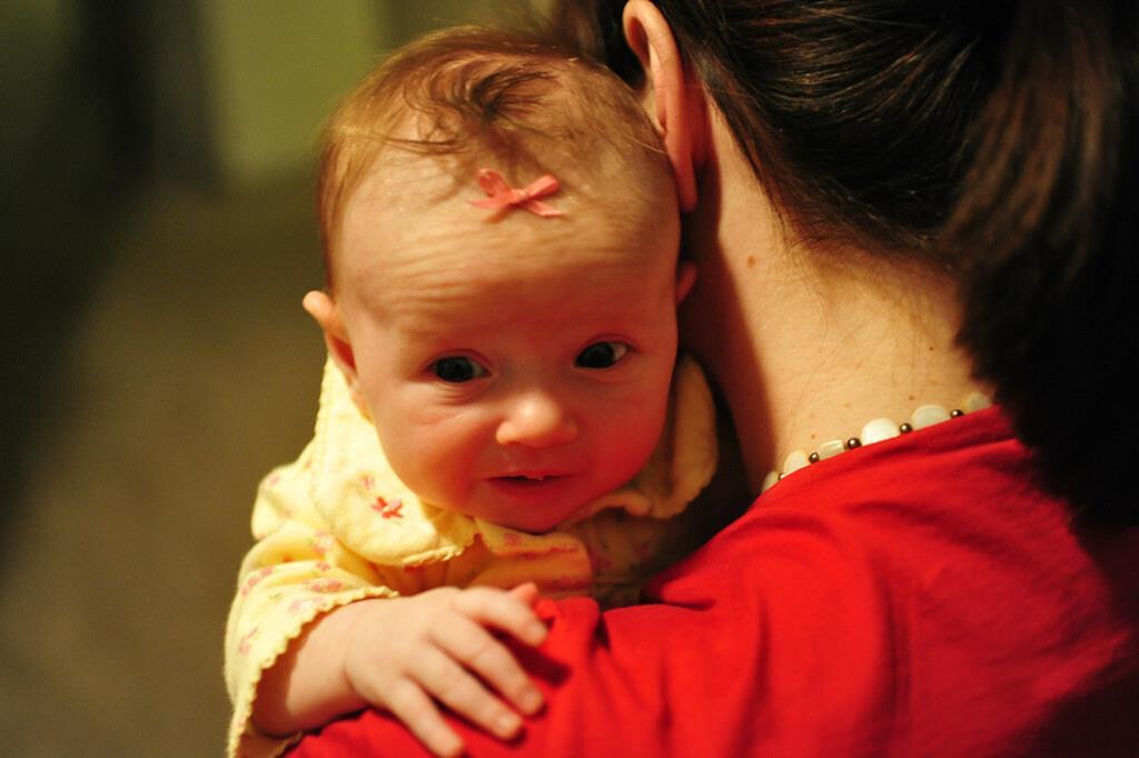 deixar o bebê ereto por pelo menos 20 minutos após as mamadas para se certificar de que ele arrotou é uma das principais formas de amenizar os sintomas do refluxo