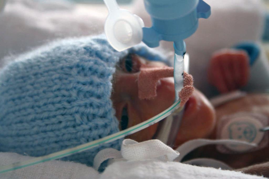 quando o bebê nasce sem que o pulmão esteja totalmente maduro, é necessário colocá-lo em uma bomba de oxigênio durante os primeiros dias