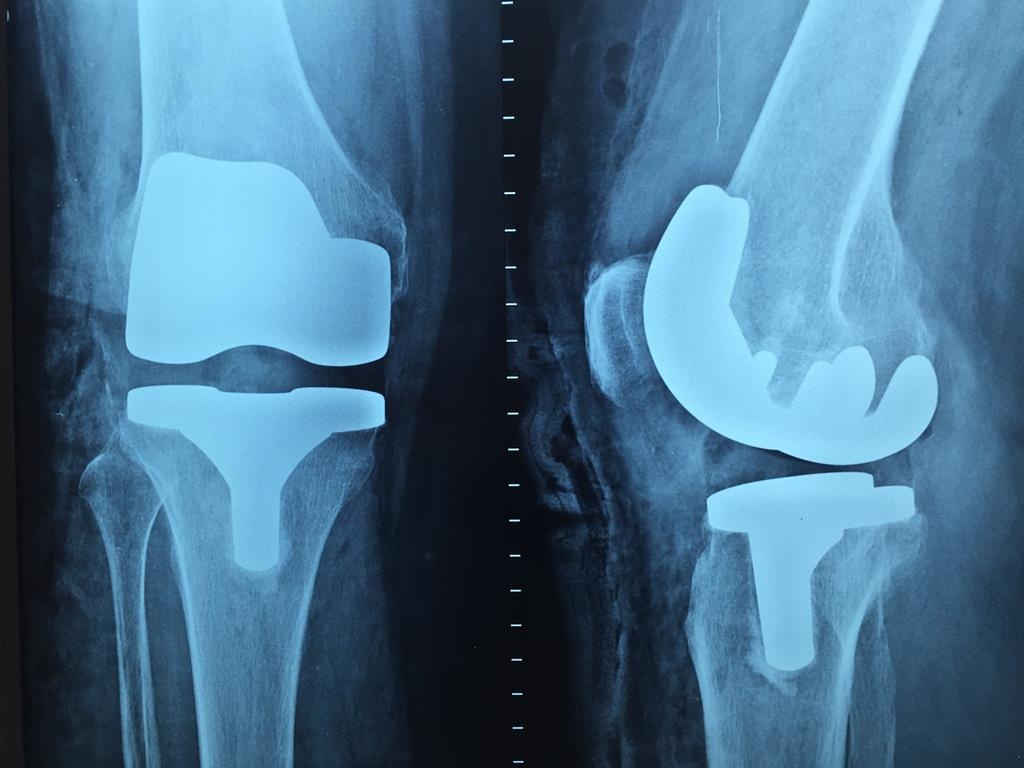o nutriente ainda auxilia no fortalecimento dos ossos, principalmente de pacientes idosos