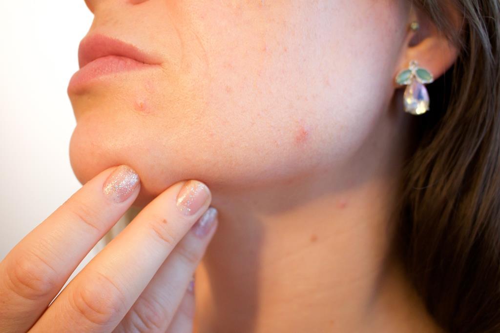 a acne é causada principalmente por descontroles hormonais