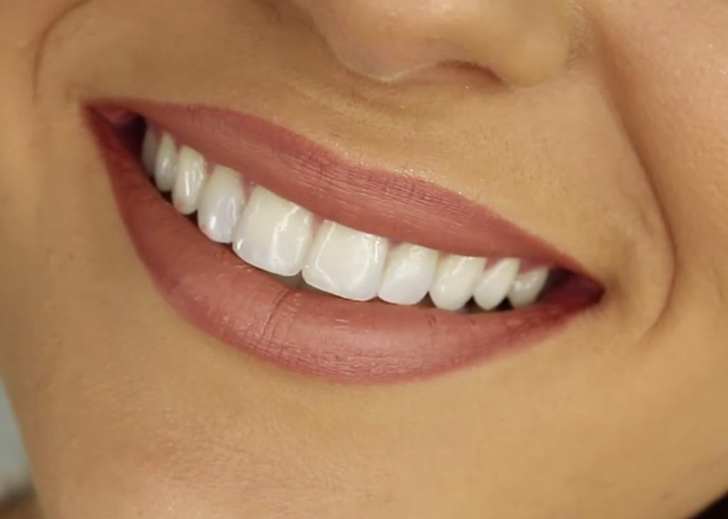 a vitamina ajuda no fortalecimento de ossos e dentes