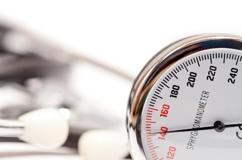 a pressão arterial nada mais é do que a pressão que o coração exerce nas artérias