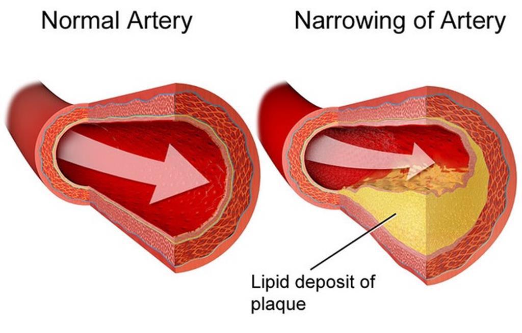 a arritmia acontece quando há um acúmulo de gordura nas artérias ou seu estreitamento