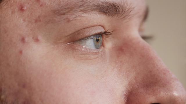 a acne grau 2 surge em forma de pequenas bolinhas com a ponta branca ou amarela