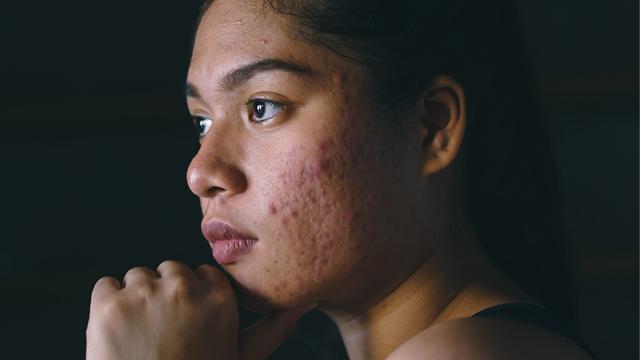 dependendo da gravidade da acne, as cicatrizes surgem sem uma causa direta