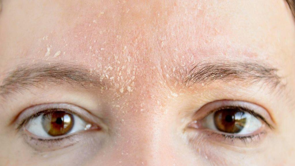 Na imagem, o rosto de uma pessoa com dermatite seborreica na pele entre as sobrancelhas e olhos.