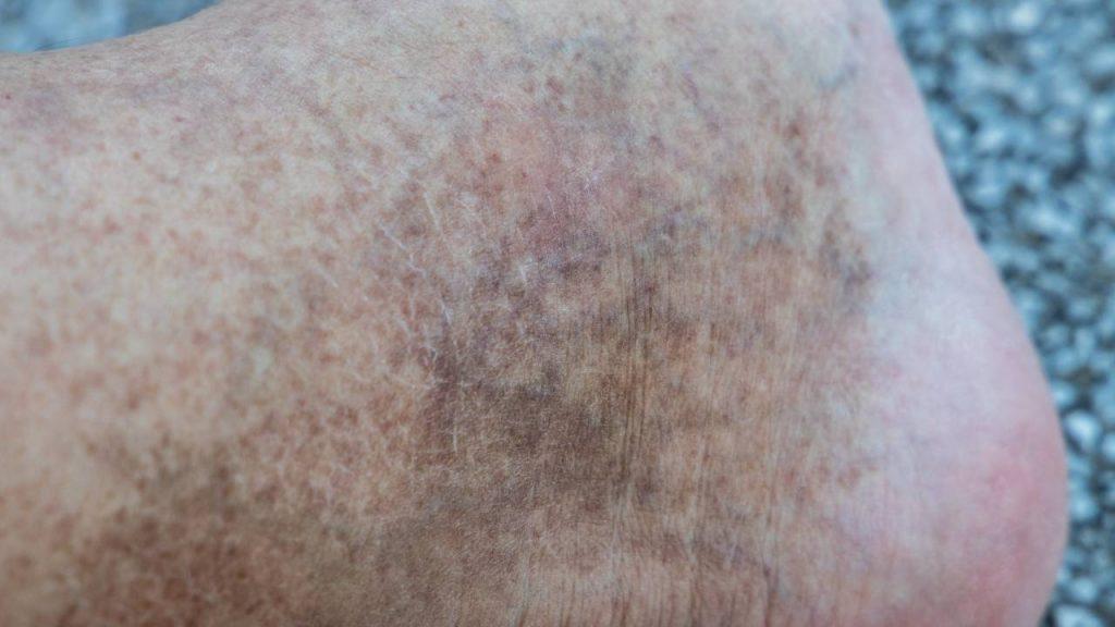 Na imagem, uma mancha marrom no tornozelo é o sintoma da dermatite ocre.