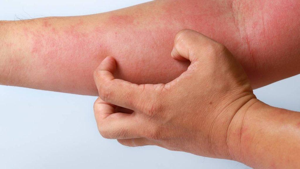 Pessoa coçando braço irritado com alergia.